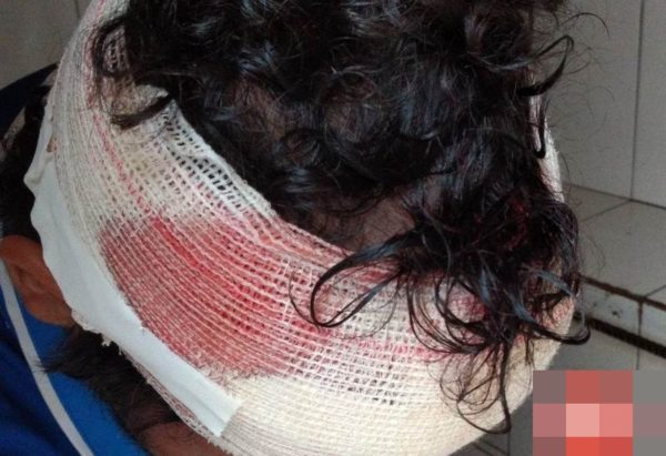 BRUTALIDADE: Adolescente é agredido a pauladas após discussão com rival em Porto Velho